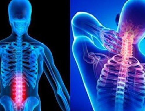 La chiropraxie en plein essor au Mexique